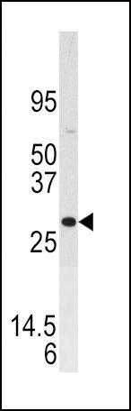 DUSP3 Antibody (PA5-15609) in Western Blot