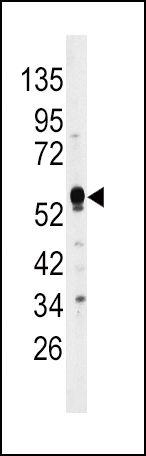 MKP2 Antibody (PA5-15549) in Western Blot