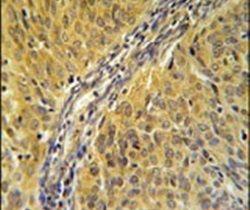 DYNC1LI2 Antibody (PA5-25392) in Immunohistochemistry