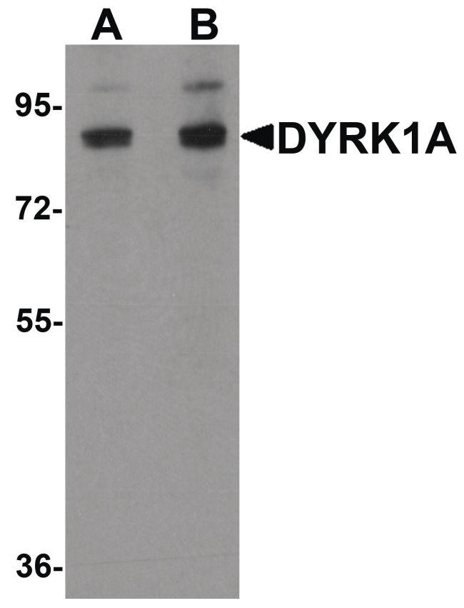 DYRK1A Antibody (PA5-21124) in Western Blot