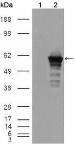 Desmin Antibody (MA5-15306) in Western Blot