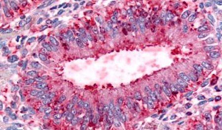 DPP8 Antibody (PA5-33476)