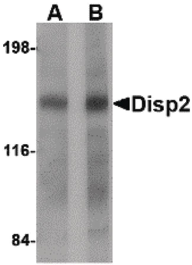 DISP2 Antibody (PA5-20631) in Western Blot