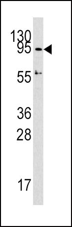 DNMT3A Antibody (PA5-11141) in Western Blot
