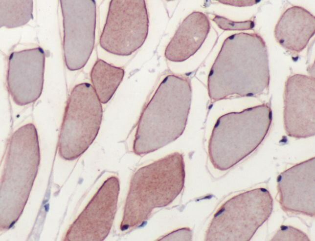 Dysferlin Antibody (PA5-32387) in Immunohistochemistry