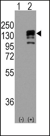 E-cadherin Antibody (PA5-11548) in Western Blot