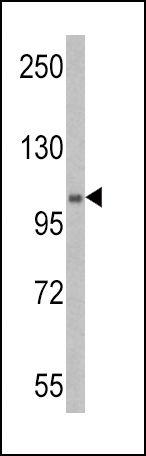 UBE1 Antibody (PA5-11959) in Western Blot