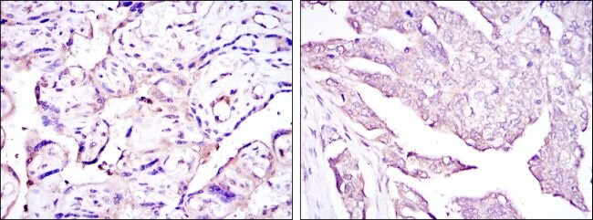 HPV Type 16 E7 Antibody (MA5-15822) in Immunohistochemistry