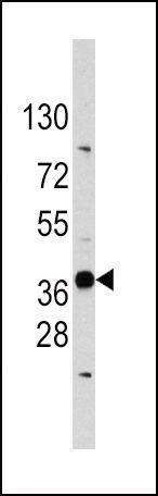 EDA Antibody (PA5-13276) in Western Blot