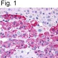 Endothelin B Receptor Antibody (PA1-20534) in Immunohistochemistry