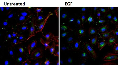 EGF Antibody (M806)