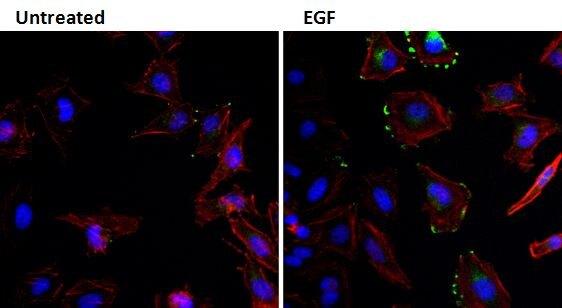 EGF Antibody (M805)