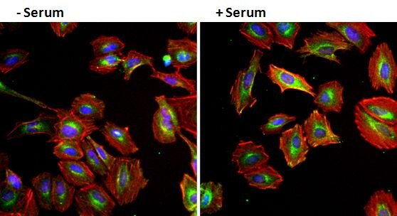EGF Antibody (M807)