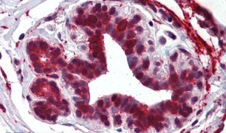 ELOVL5 Antibody (PA5-32742) in Immunohistochemistry (Paraffin)