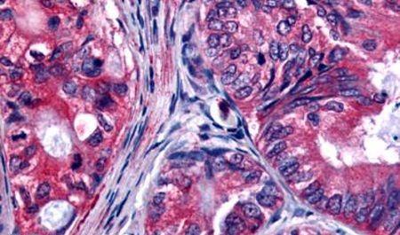 EphB2 Antibody (PA5-33515) in Immunohistochemistry (Paraffin)