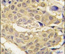 EPRS Antibody (PA5-14507) in Immunohistochemistry