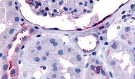 ErbB4 Antibody (PA5-32758) in Immunohistochemistry (Paraffin)