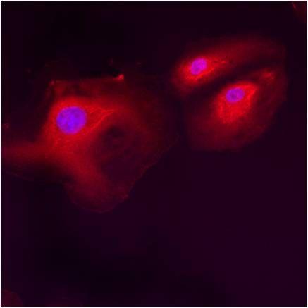 LMAN1 Antibody (PA1-074) in Immunofluorescence