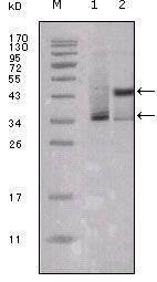 Estrogen Receptor alpha Antibody (MA5-15402) in Western Blot