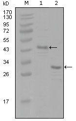 Estrogen Receptor alpha Antibody (MA5-15454)