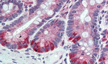 FAM62A Antibody (PA5-32763)