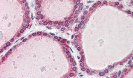 FAM62A Antibody (PA5-32763) in Immunohistochemistry (Paraffin)