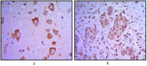ETS1 Antibody (MA5-15610) in Immunohistochemistry
