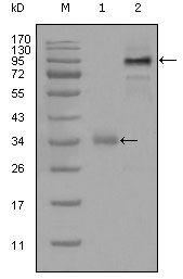 ETV1 Antibody (MA5-15461)
