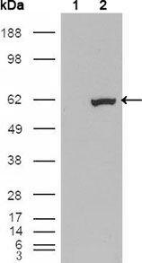ETV1 Antibody (MA5-15461) in Western Blot