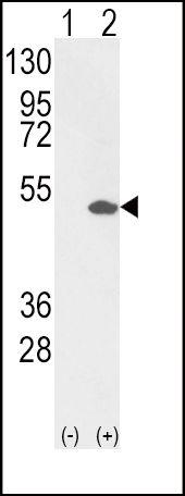 ETV4 Antibody (PA5-13595) in Western Blot