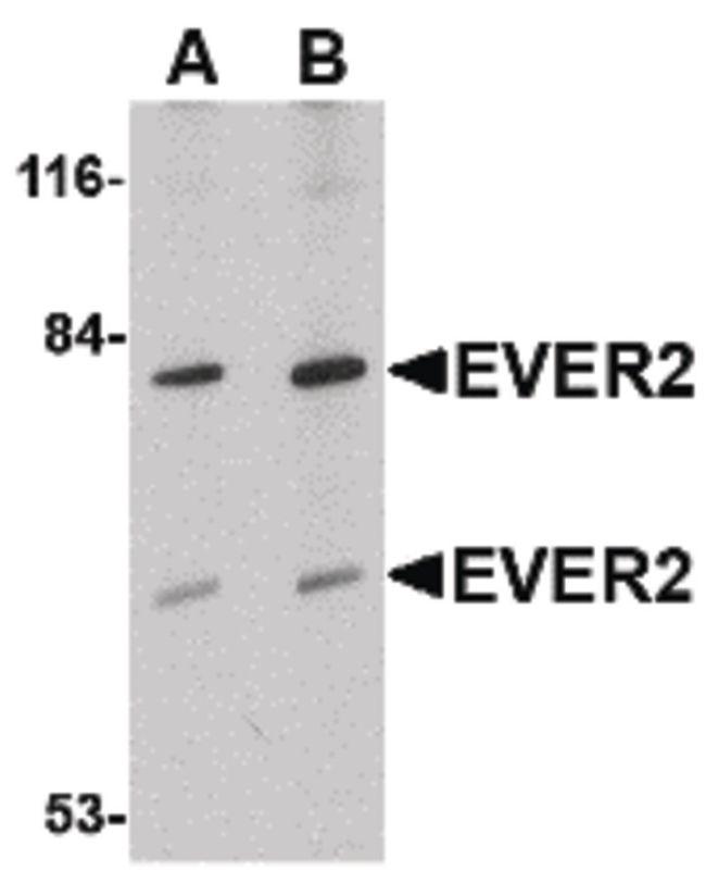EVER2 Antibody (PA5-20526) in Western Blot