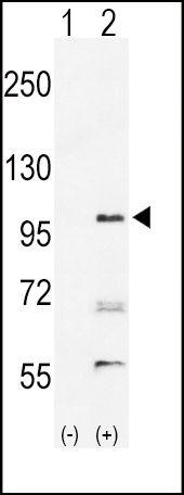 EphA2 Antibody (PA5-14574) in Western Blot