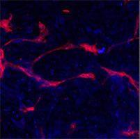 EphA4 Antibody (PA5-14578) in Immunofluorescence