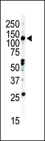 EphB2 Antibody (PA5-14607) in Western Blot