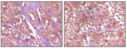 EphB4 Antibody (MA5-15286) in Immunohistochemistry