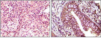 EphB6 Antibody (MA5-15280) in Immunohistochemistry
