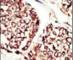 ErbB3 Antibody (PA5-14636) in Immunohistochemistry
