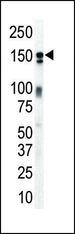ErbB3 Antibody (PA5-14636) in Western Blot