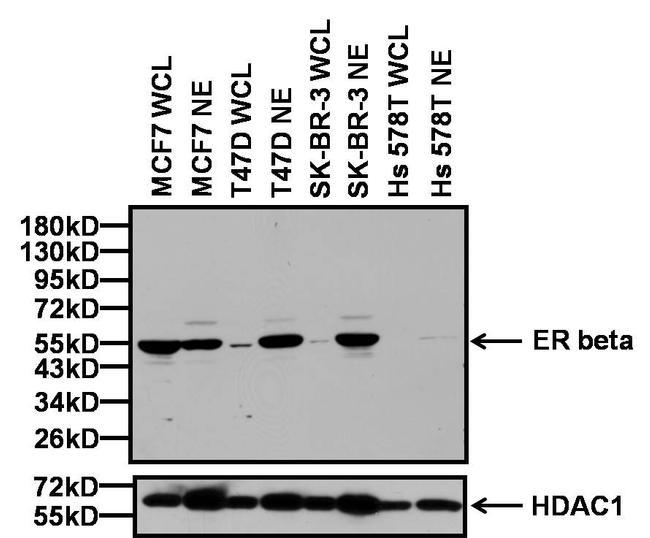 Estrogen Receptor beta Antibody (PA1-310B) in Western Blot