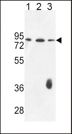 Factor XII Antibody (PA5-26672) in Western Blot