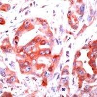 PAR1 Antibody (PA1-38749) in Immunohistochemistry