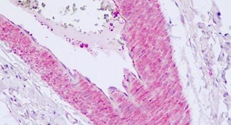 PAR2 Antibody (PA5-33528)