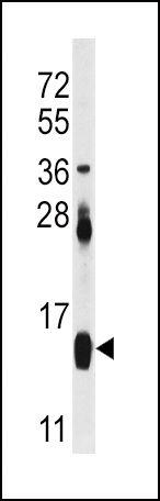 FABP4 Antibody (PA5-12352) in Western Blot