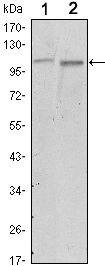FAK Antibody (MA5-15588) in Western Blot