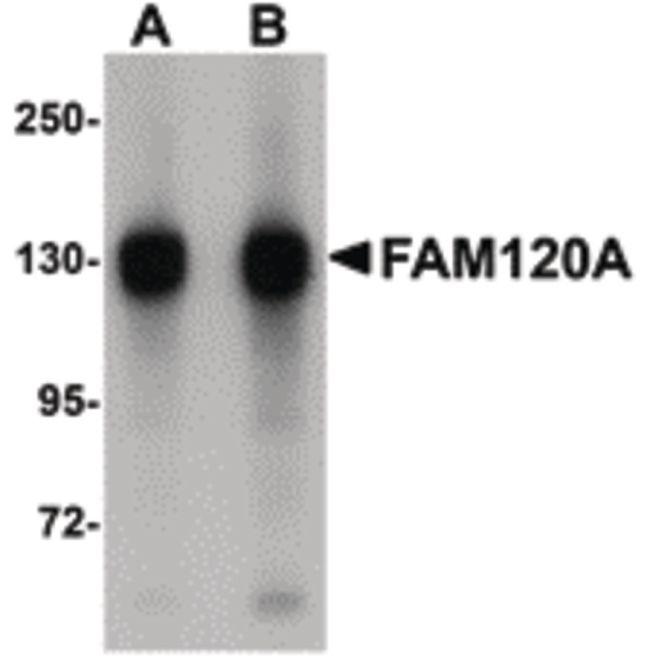 FAM120A Antibody (PA5-20800) in Western Blot