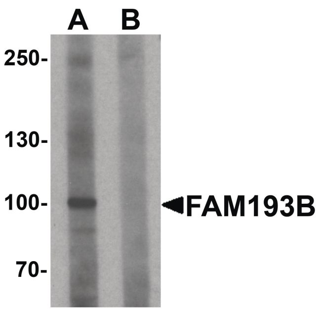 FAM193B Antibody (PA5-34440) in Western Blot