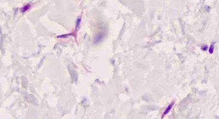 FAP Antibody (PA5-32766)