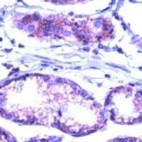 FAS Antibody (PA1-37368) in Immunohistochemistry