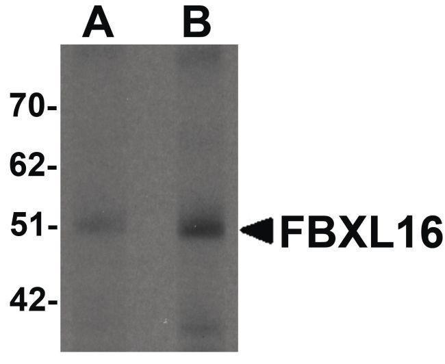 FBXL16 Antibody (PA5-21094) in Western Blot