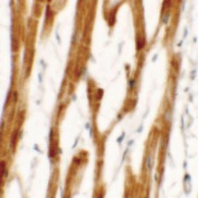 FCHO2 Antibody (PA5-34390) in Immunohistochemistry